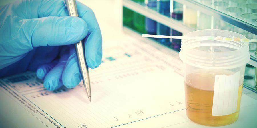 ¿PUEDE EL CBD DAR POSITIVO EN UNA PRUEBA DE DETECCIÓN DE DROGAS?