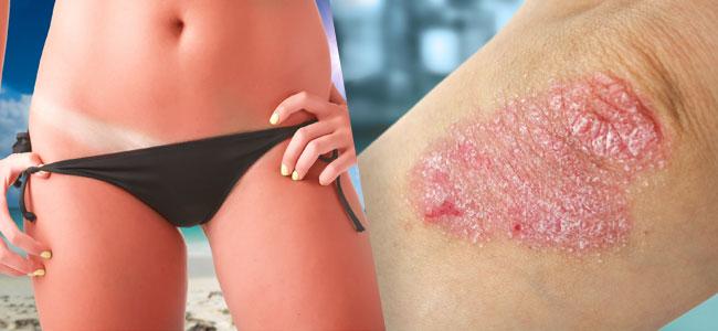 trastornos de la piel Bhang