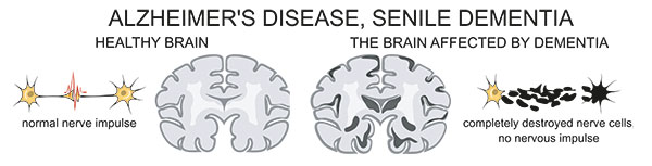 Normal vs Alzheimer cerebro
